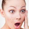 Яка глина краще допомагає від прищів і комедонов на обличчі